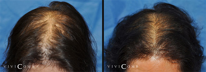 The hair covered both the front and the center of the scalp, hair became thicker